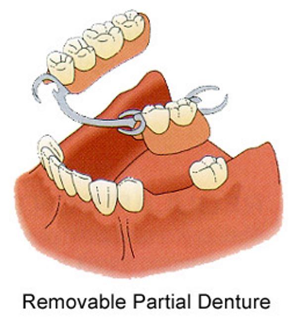 complete partial dentures