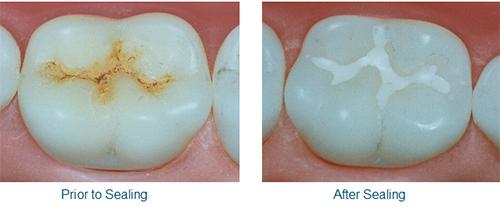 dental sealants near you
